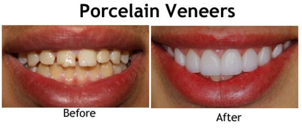 cosmetic dentist porcelain veneers
